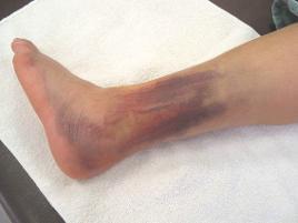 grade-2-sprain