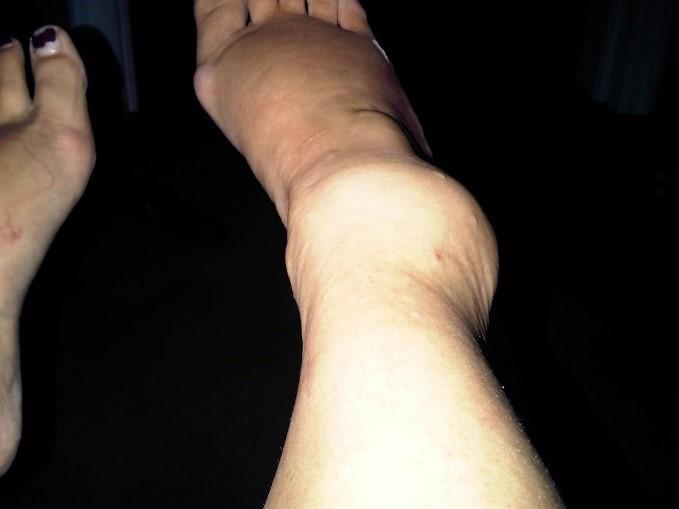 grade-3-sprain