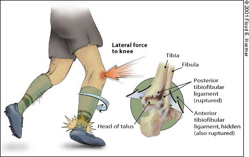 high-ankle-sprain-cause